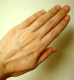 手before.jpg